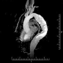 cirurgia endovascular