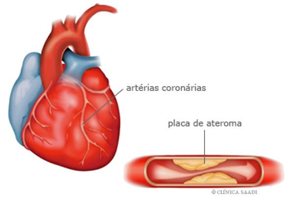 Figura 1. Aneurisma da aorta torácica
