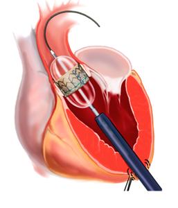 Valva aórtica Implante Transapical