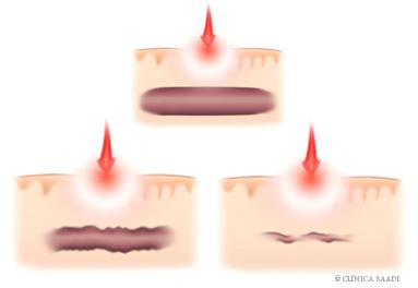 Tratamento contra as  varizes. Ação do laser (Photoderm) em microvarizes.