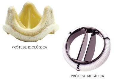 Protese Biológica e Protese Metálica
