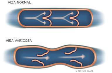 Veia normal e veia varicosa – dilatada e com válvulas insuficientes essa causa as varises